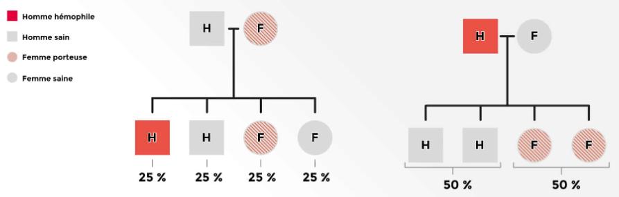 Arbre généalogique pour la transmission de l'hémophilie B